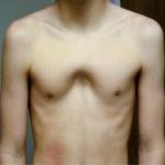 PECTUS ARCUATUM (Currarino-Silverman Sendromu, Pouter Güvercin Göğsü)